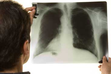Doctor looking at x ray