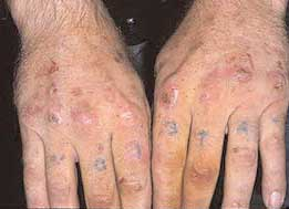 Hypersensitivity vasculitis: MedlinePlus Medical Encyclopedia